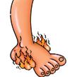 Mám pálivé nohy